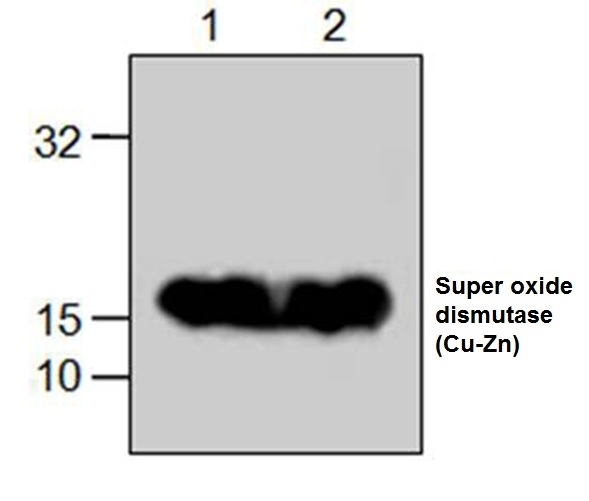 Anti Superoxide Dismutase (Cu-Zn) Antibody gallery image 1