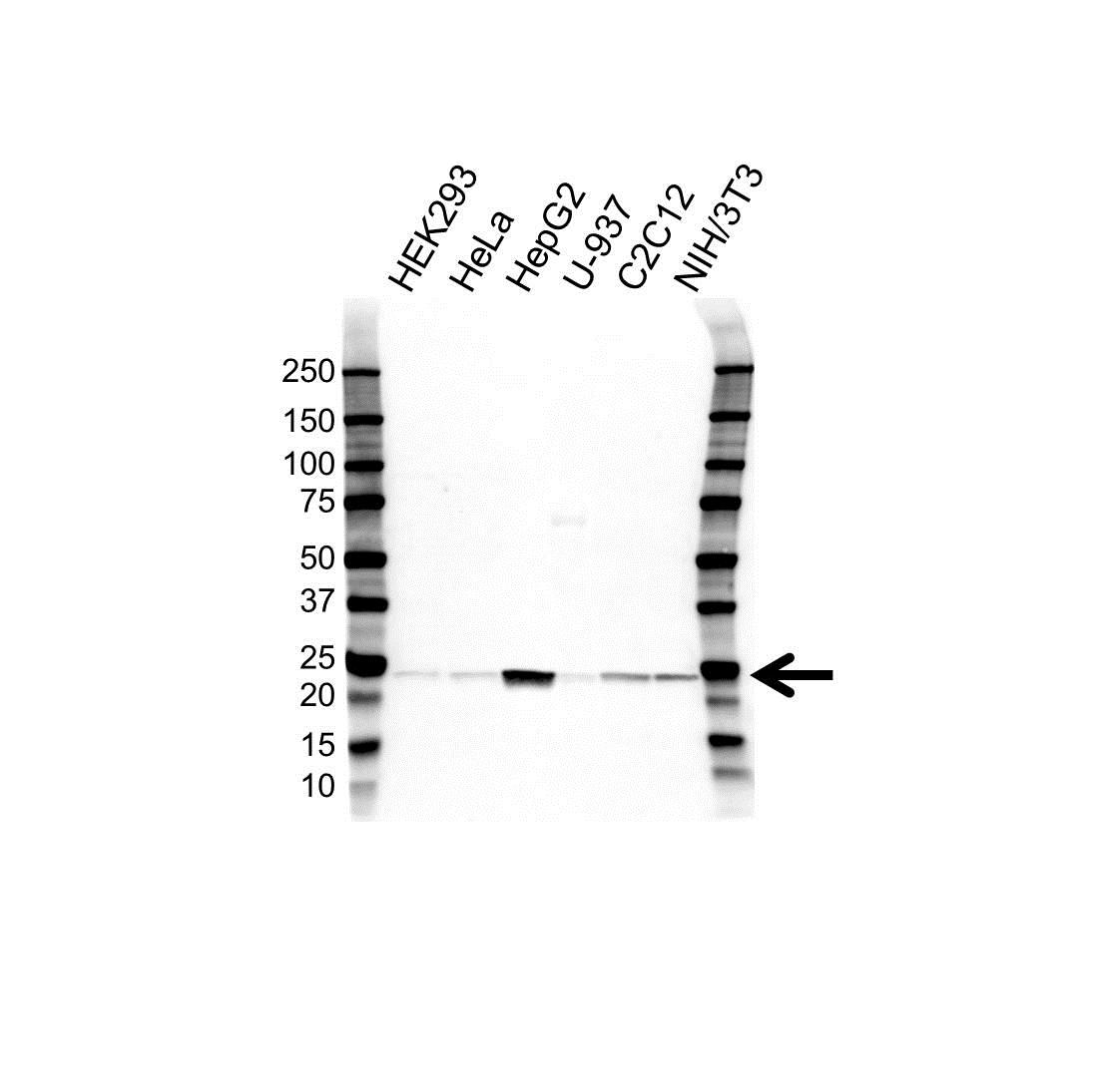 Anti Superoxide Dismutase (MN) Antibody (PrecisionAb Polyclonal Antibody) gallery image 1