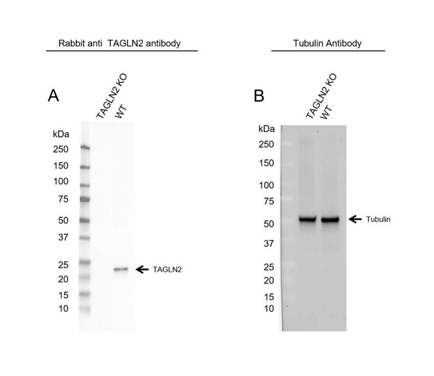 Anti TAGLN2 Antibody (PrecisionAb Polyclonal Antibody) thumbnail image 2