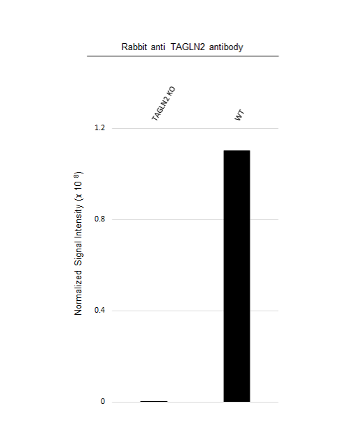 Anti TAGLN2 Antibody (PrecisionAb Polyclonal Antibody) thumbnail image 3
