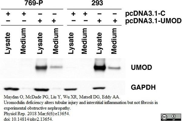 Anti Human Tamm Horsfall Glycoprotein Antibody thumbnail image 5