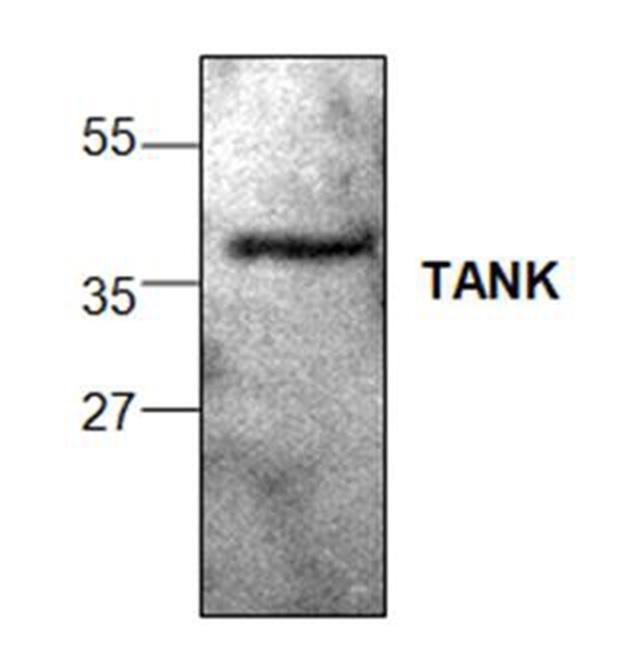 Anti Tank Antibody gallery image 1