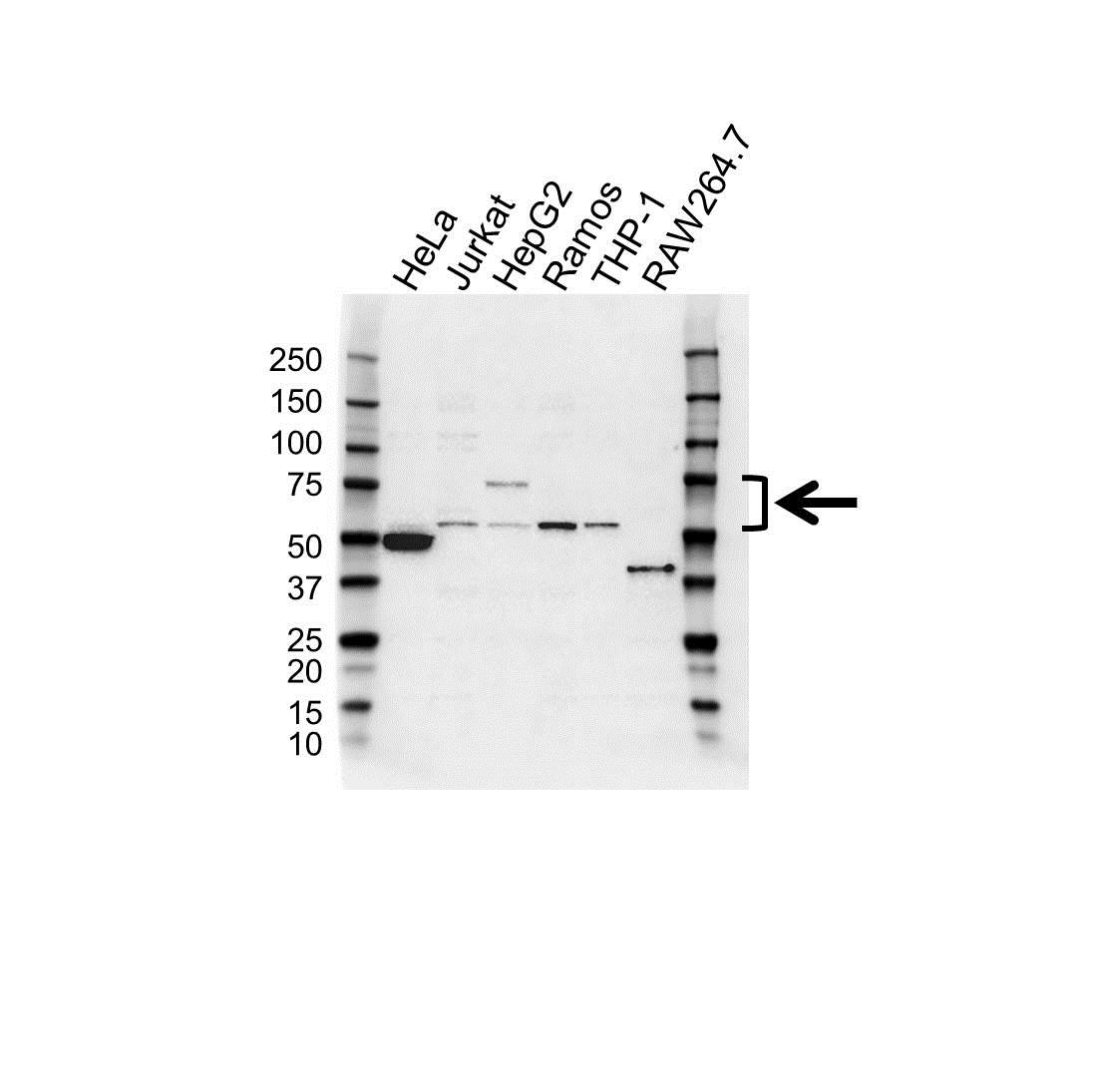 Anti Tec Antibody (PrecisionAb Polyclonal Antibody) gallery image 1
