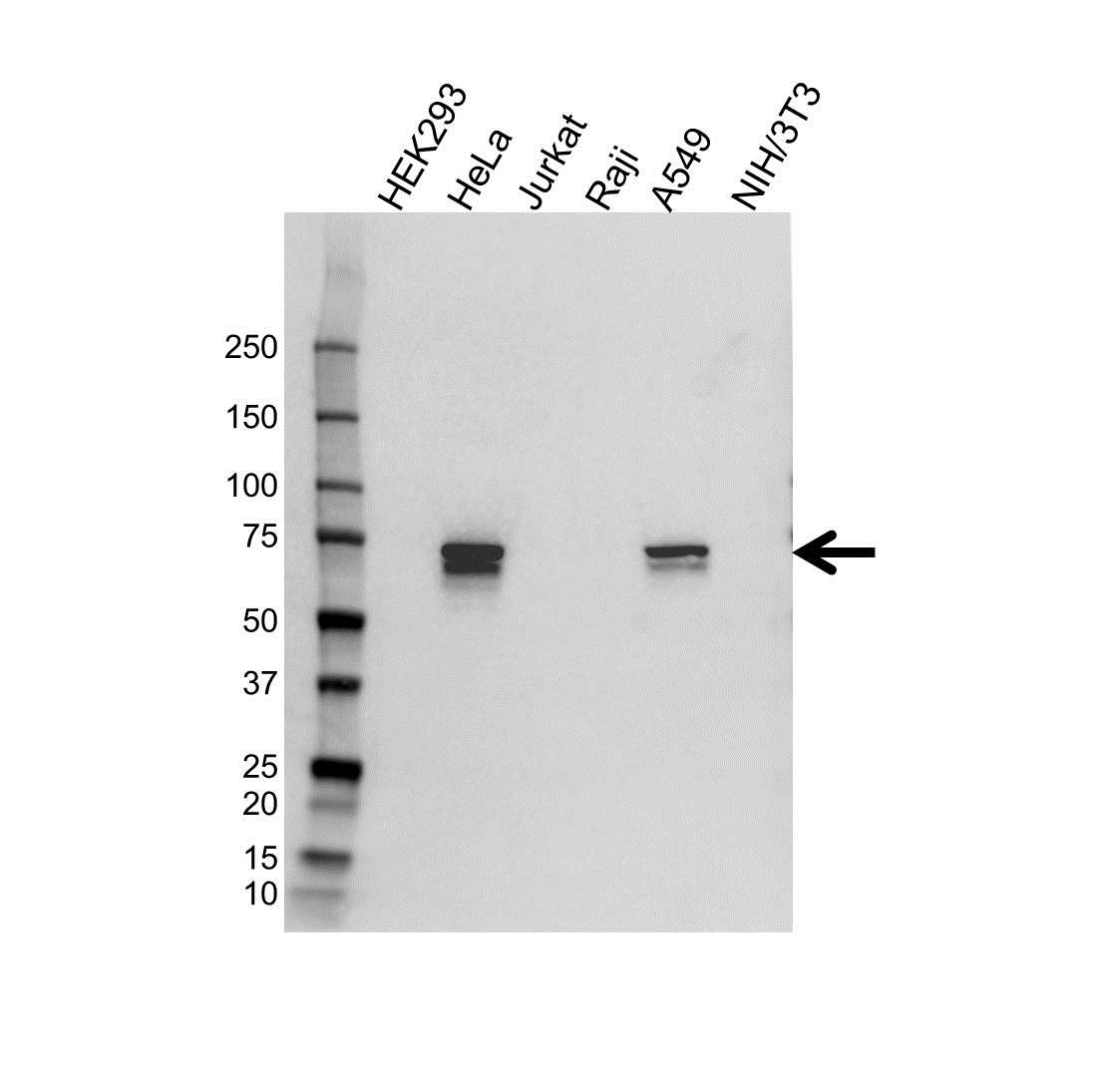 Anti Tgfbi Antibody (PrecisionAb™ Polyclonal Antibody) gallery image 1