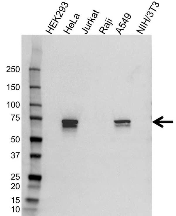 Anti Tgfbi Antibody (PrecisionAb Polyclonal Antibody) gallery image 1