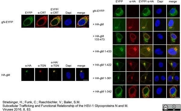 Anti Human TGN46 Antibody thumbnail image 3