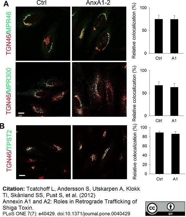 Anti Human TGN46 Antibody thumbnail image 14