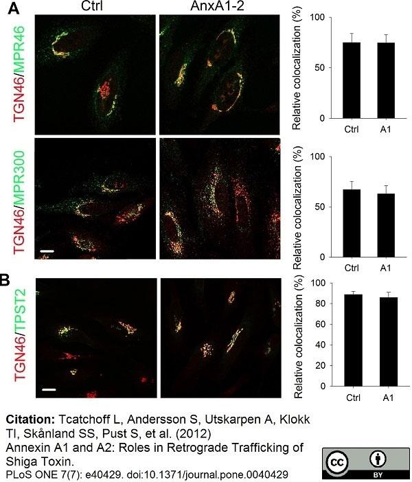 Anti Human TGN46 Antibody thumbnail image 32