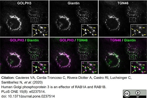 Anti Human TGN46 Antibody thumbnail image 36
