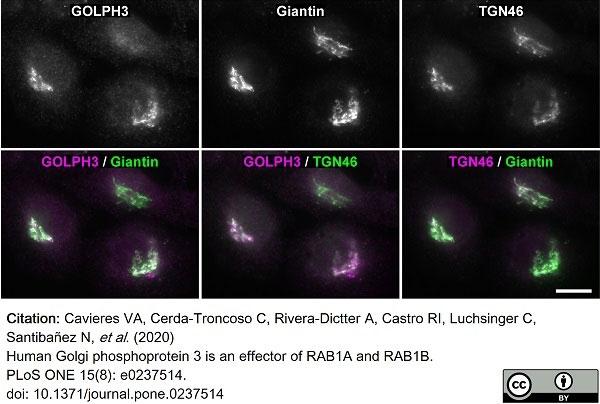 Anti Human TGN46 Antibody thumbnail image 37