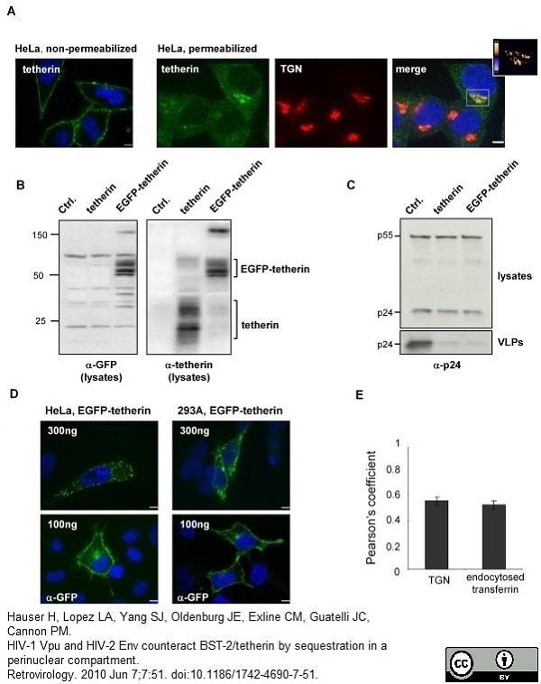 Anti Human TGN46 Antibody thumbnail image 4