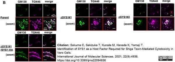 Anti Human TGN46 Antibody thumbnail image 44