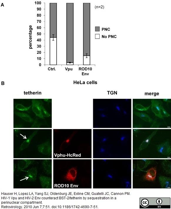 Anti Human TGN46 Antibody thumbnail image 5