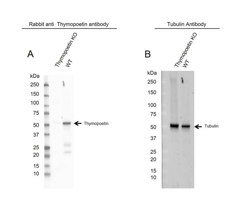 Anti Thymopoetin Antibody (PrecisionAb Polyclonal Antibody) thumbnail image 2
