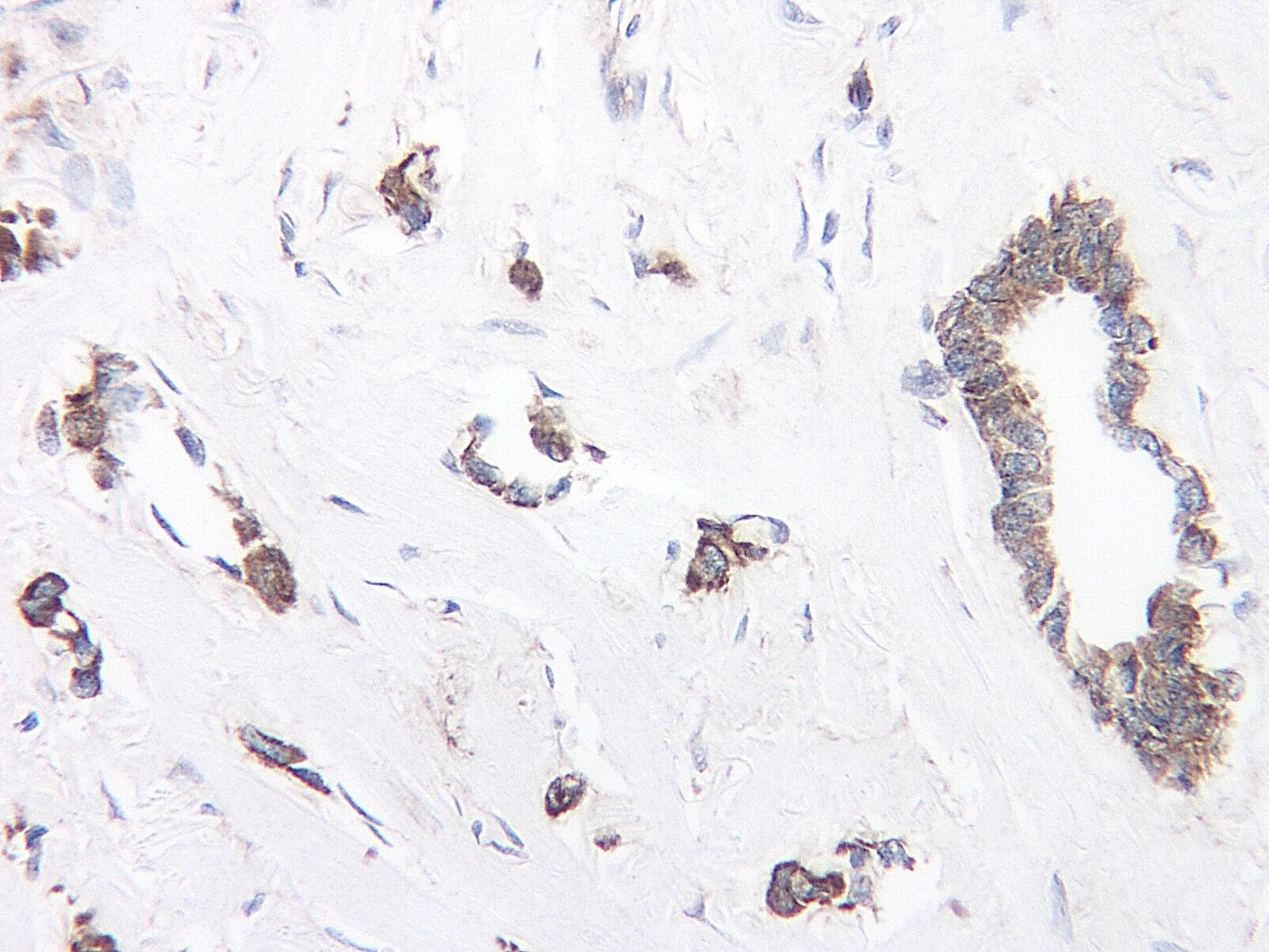 Anti Human TIMP-1 Antibody thumbnail image 1
