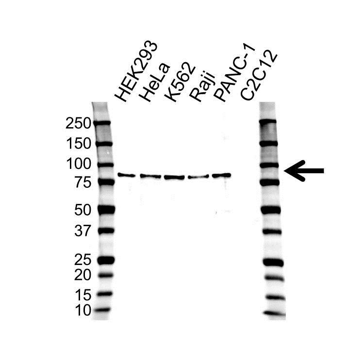 Anti Tissue Transglutaminase Antibody (PrecisionAb Polyclonal Antibody) gallery image 1