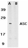 Anti Human TMS1 (C-Terminal) Antibody thumbnail image 1