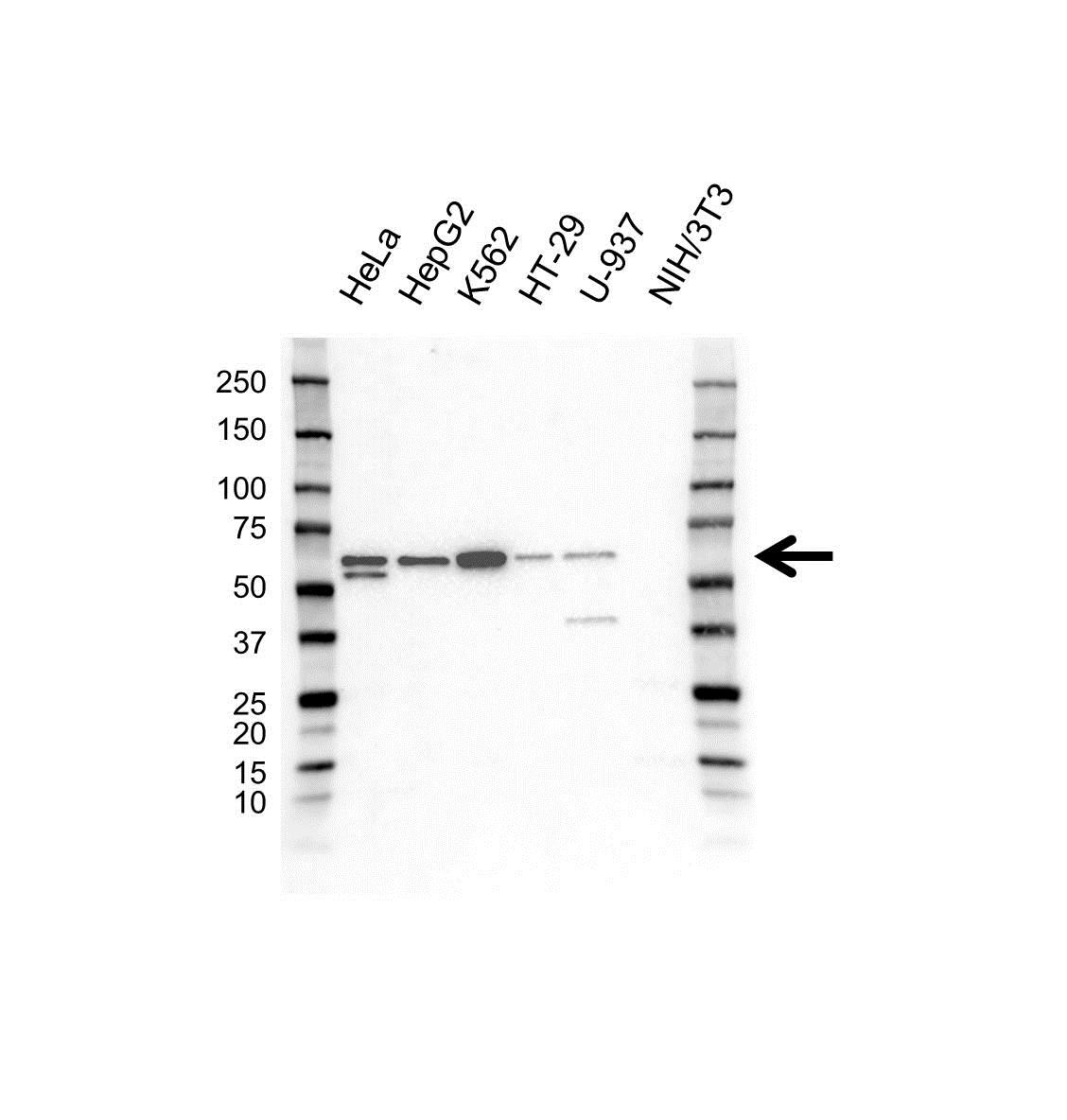 Anti TOM1 Antibody (PrecisionAb Polyclonal Antibody) gallery image 1
