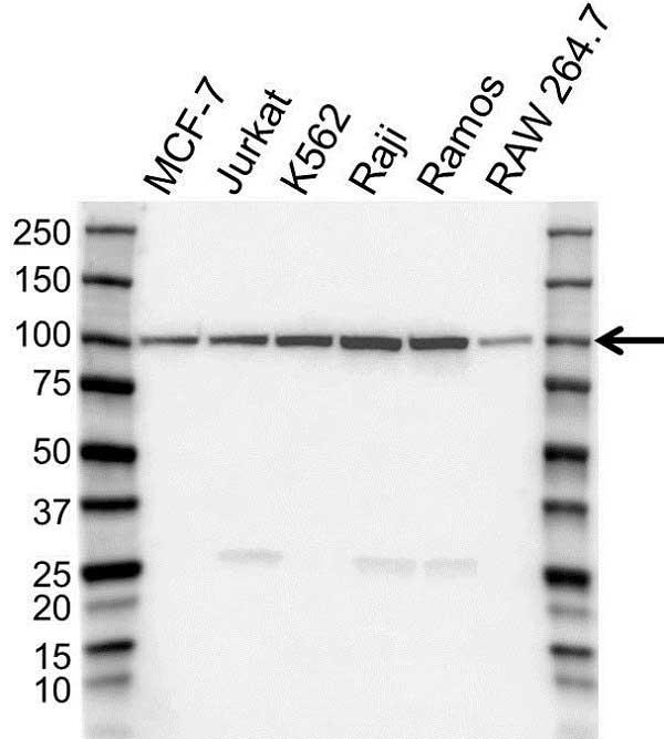 Anti TOP1 Antibody (PrecisionAb Polyclonal Antibody) gallery image 1