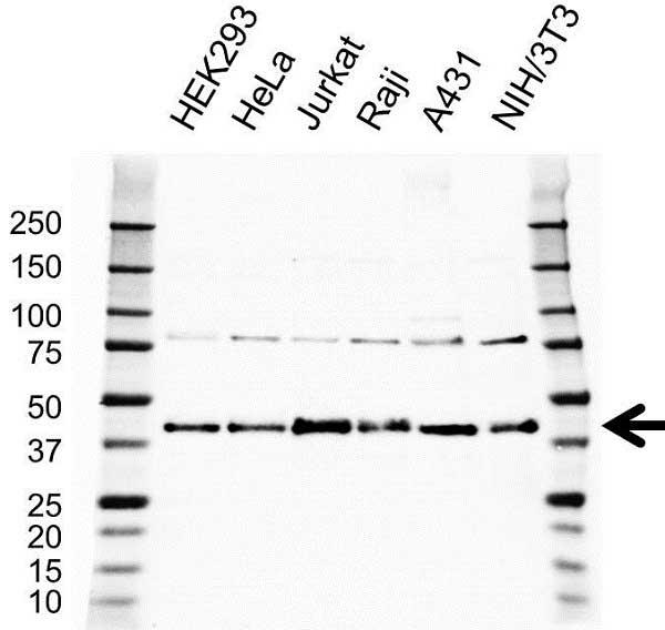 Anti TRA2B Antibody (PrecisionAb Polyclonal Antibody) gallery image 1