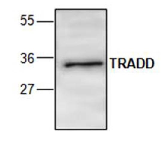 Anti TRADD Antibody gallery image 1