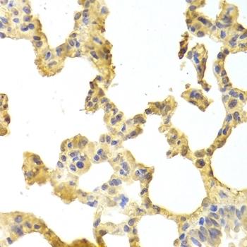 Anti TRAF2 Antibody thumbnail image 2