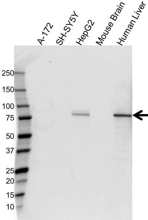 Anti Transferrin Antibody (PrecisionAb Polyclonal Antibody) gallery image 1