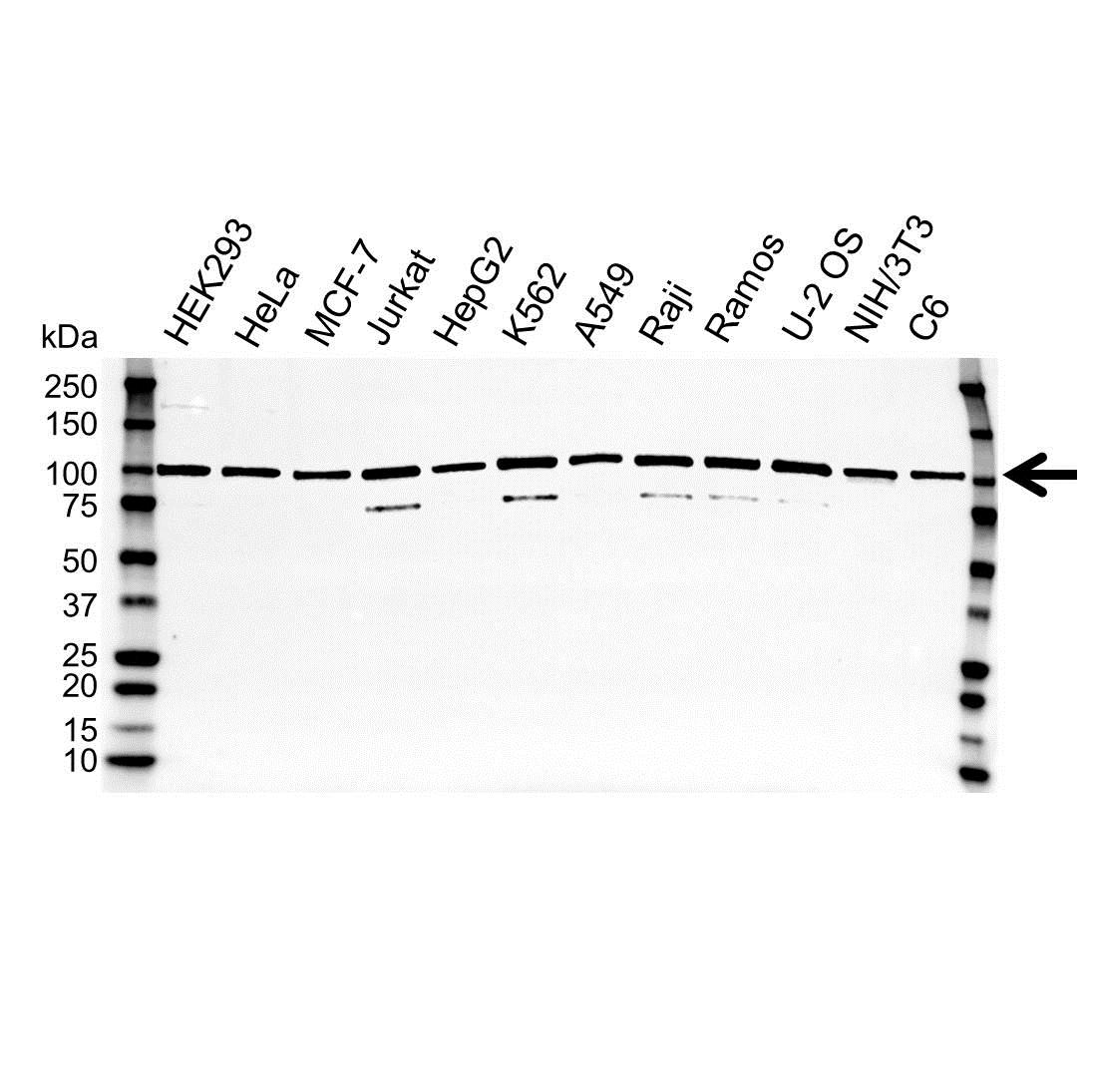 Anti TRAP2 Antibody (PrecisionAb™ Polyclonal Antibody) gallery image 1