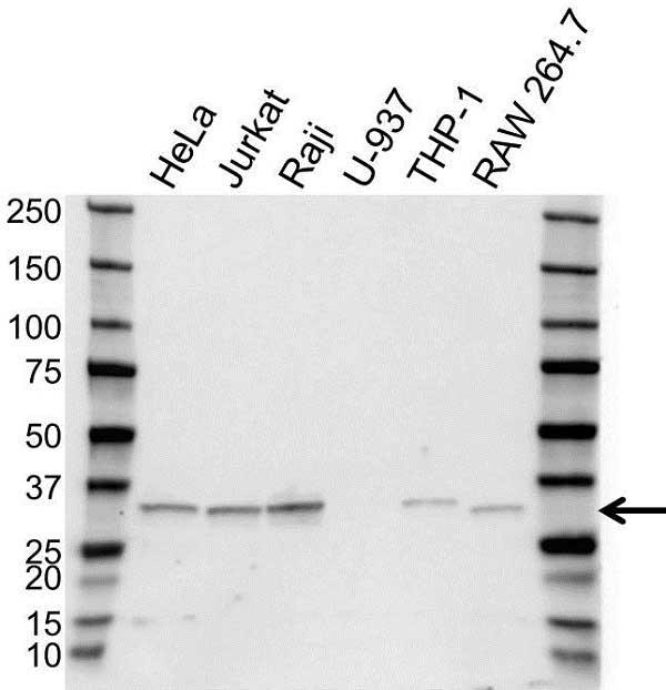 Anti TREX1 Antibody (PrecisionAb Polyclonal Antibody) gallery image 1