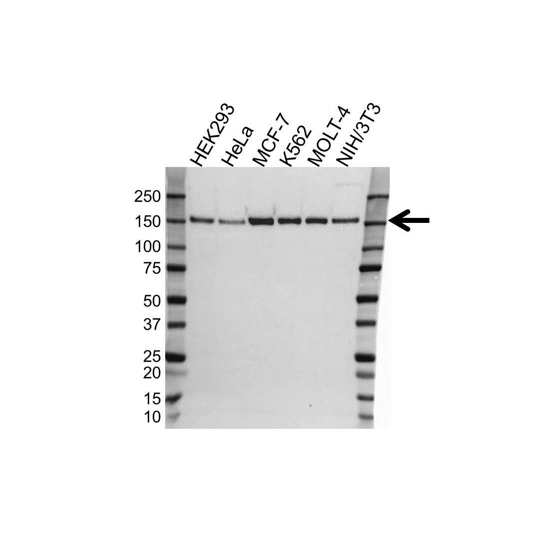 Anti TRIM33 Antibody (PrecisionAb Polyclonal Antibody) gallery image 1