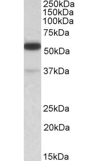 Anti Human TRIM5 Alpha (N-Terminal) Antibody thumbnail image 1