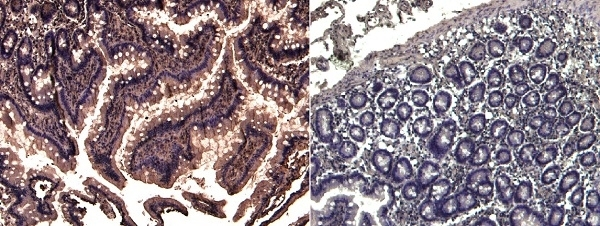 Anti Human TRIM5 Alpha (N-Terminal) Antibody thumbnail image 2