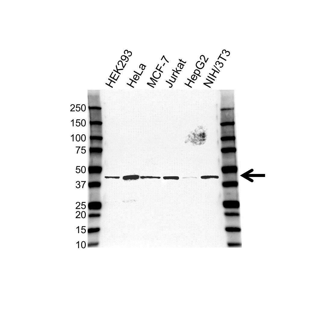 Anti Tropomodulin 3 Antibody (PrecisionAb Polyclonal Antibody) gallery image 1