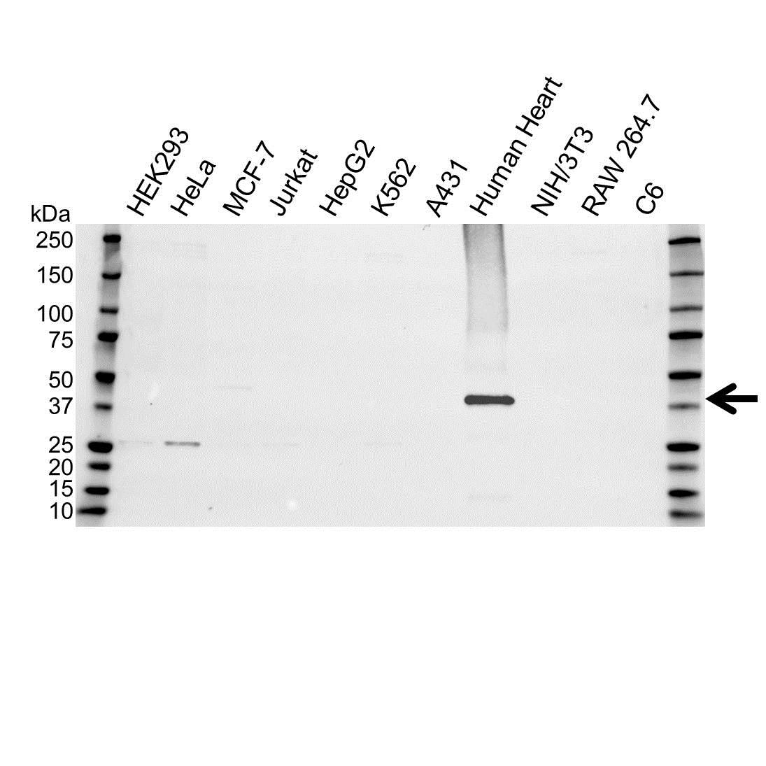 Anti Troponin T (Cardiac) Antibody (PrecisionAb Polyclonal Antibody) gallery image 1