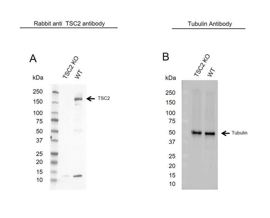 Anti TSC2 Antibody (PrecisionAb Polyclonal Antibody) thumbnail image 2