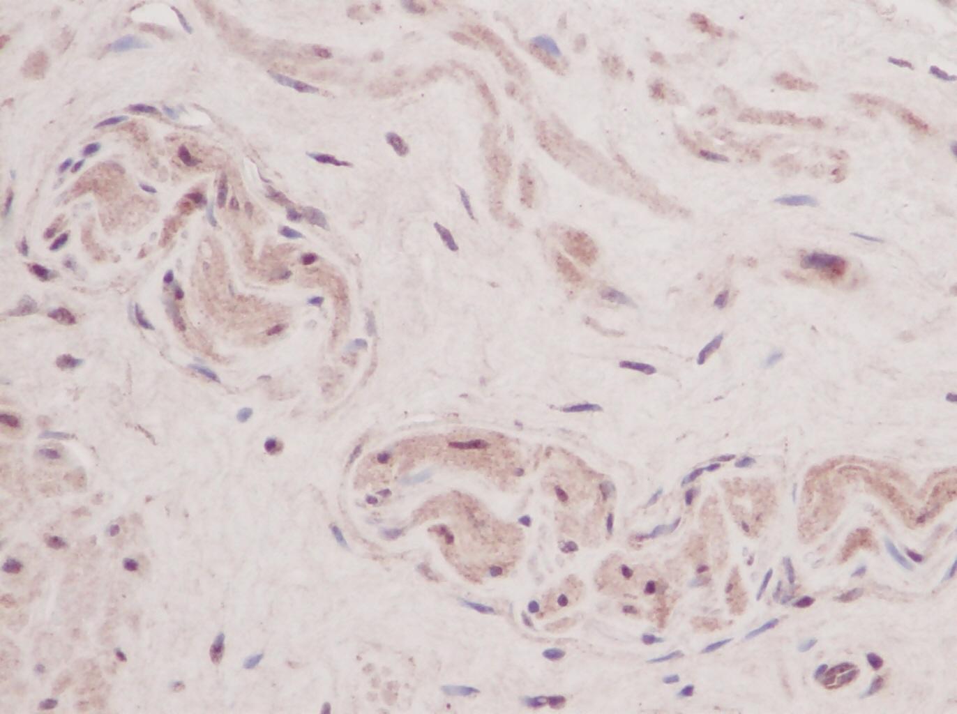 Anti Human TSLP Antibody gallery image 1