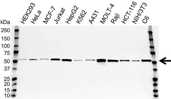 Anti Tubulin Alpha 1B Chain Antibody (PrecisionAb Polyclonal Antibody) gallery image 1