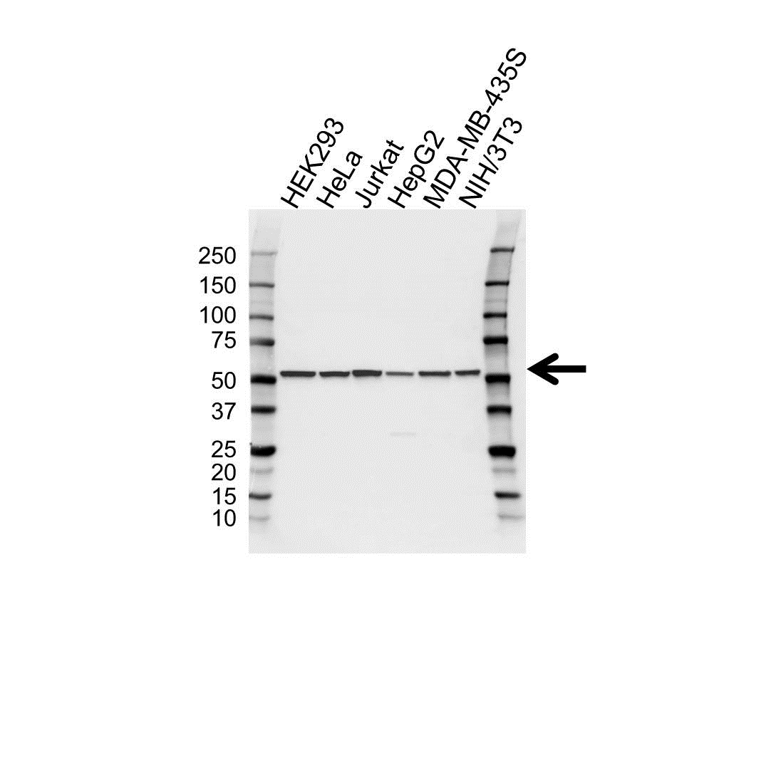 Anti Tubulin Alpha 3C/D Chain Antibody (PrecisionAb Polyclonal Antibody) gallery image 1