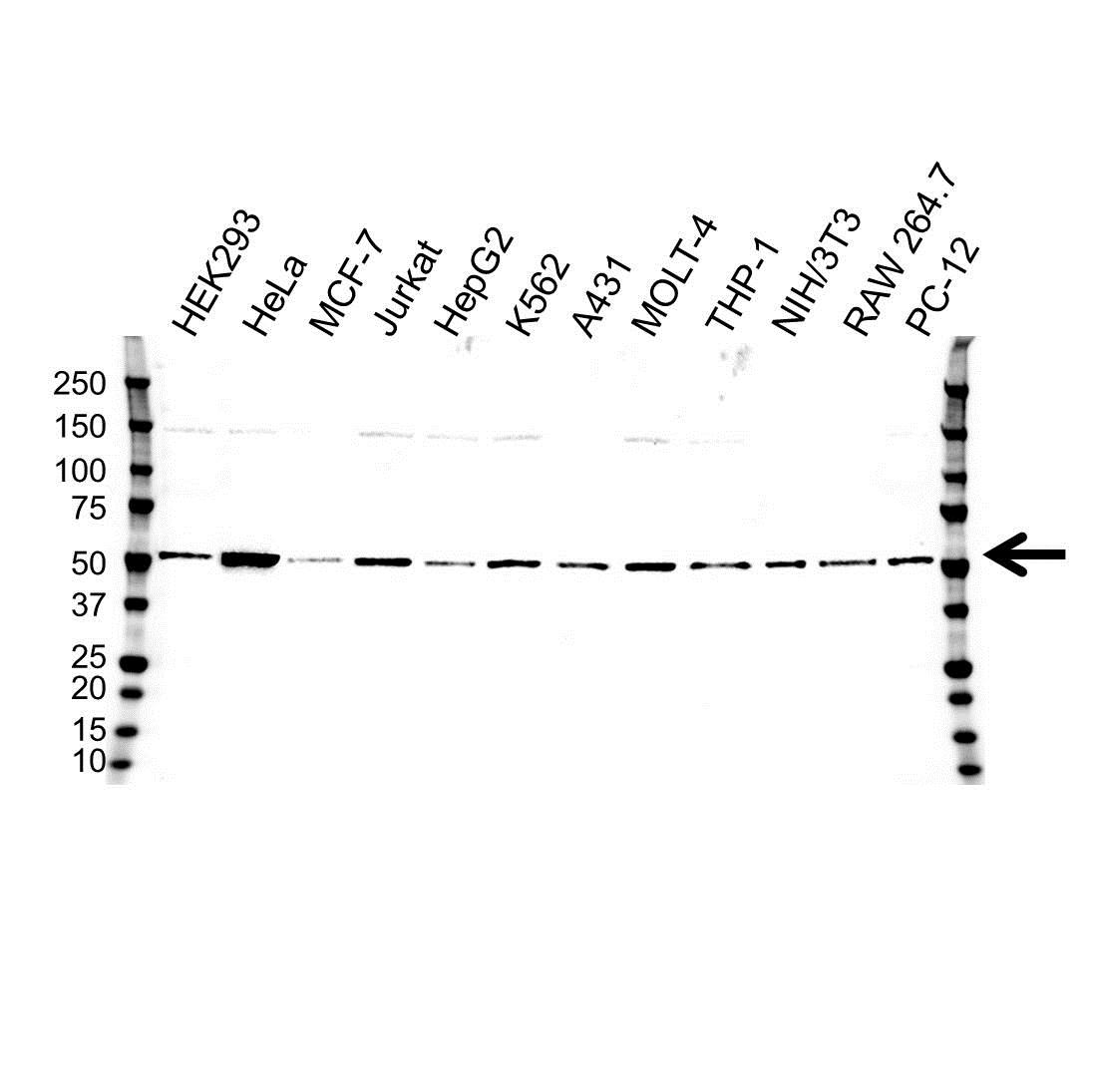 Anti Tubulin Alpha 4A Chain Antibody (PrecisionAb Polyclonal Antibody) gallery image 1