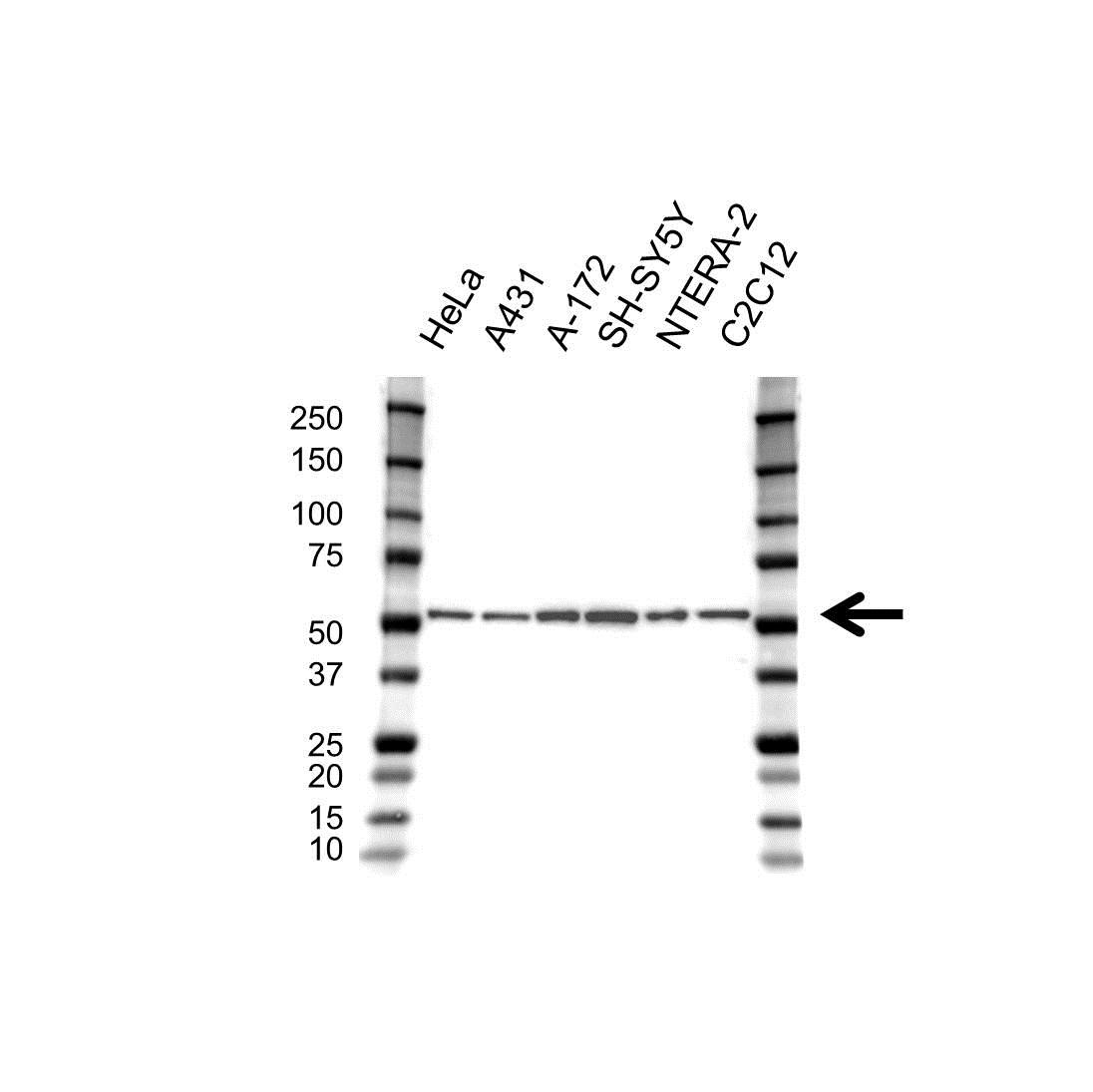 Anti Tubulin Beta 2B Antibody (PrecisionAb™ Polyclonal Antibody) gallery image 1