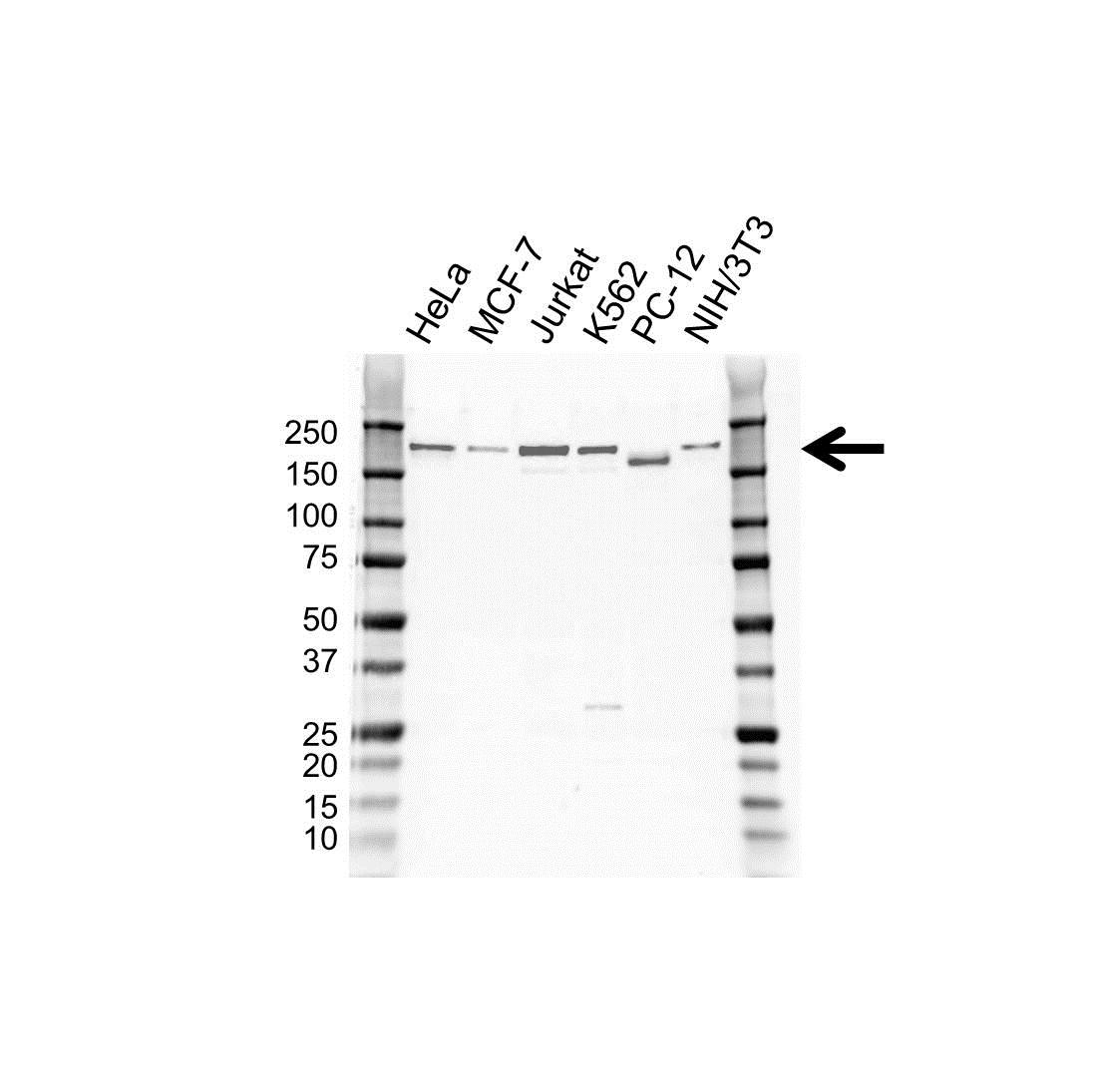 Anti Tyrosine-Protein Kinase BAZ1B Antibody (PrecisionAb Polyclonal Antibody) gallery image 1