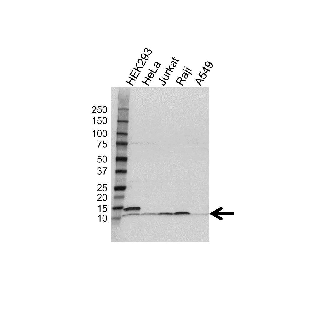 Anti UBA52 Antibody (PrecisionAb Polyclonal Antibody) gallery image 1