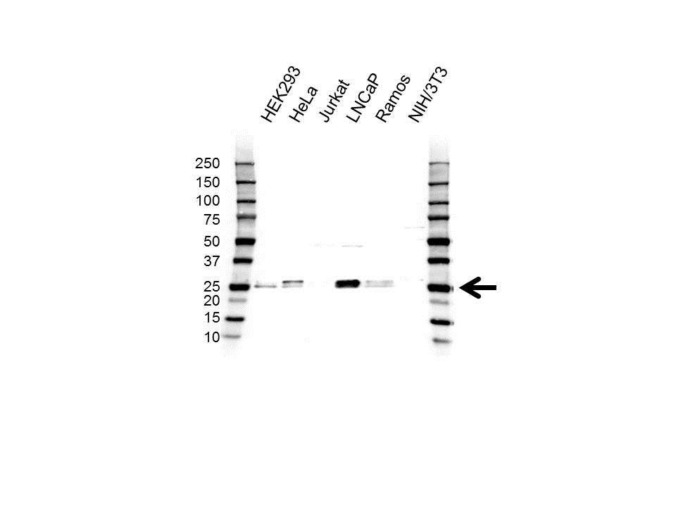 Anti UBE2E2 Antibody (PrecisionAb Polyclonal Antibody) gallery image 1