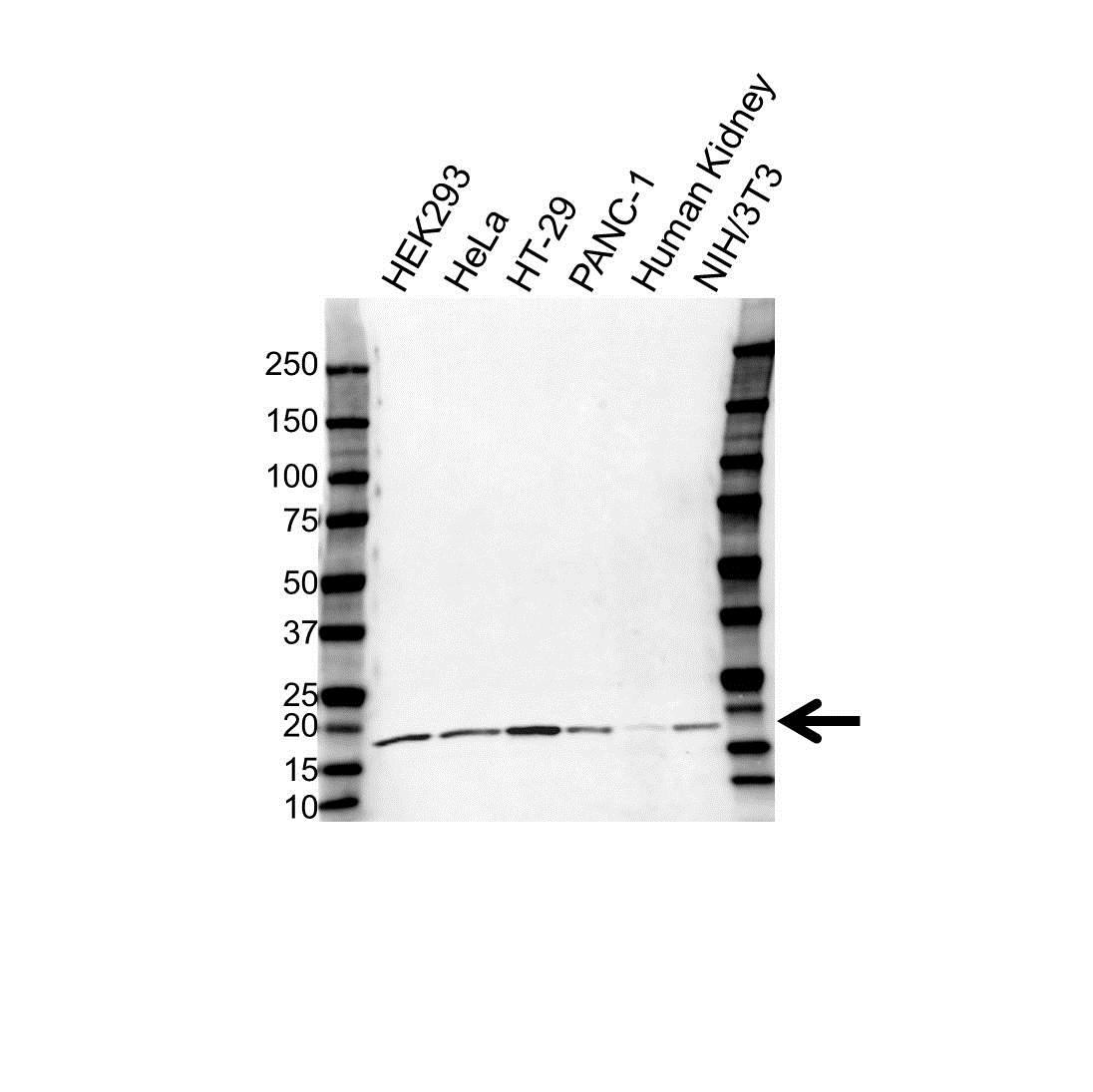 Anti UBE2V1 Antibody (PrecisionAb Polyclonal Antibody) gallery image 1