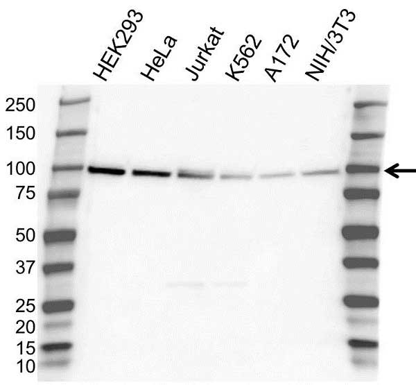 Anti UBE3A Antibody (PrecisionAb Polyclonal Antibody) gallery image 1