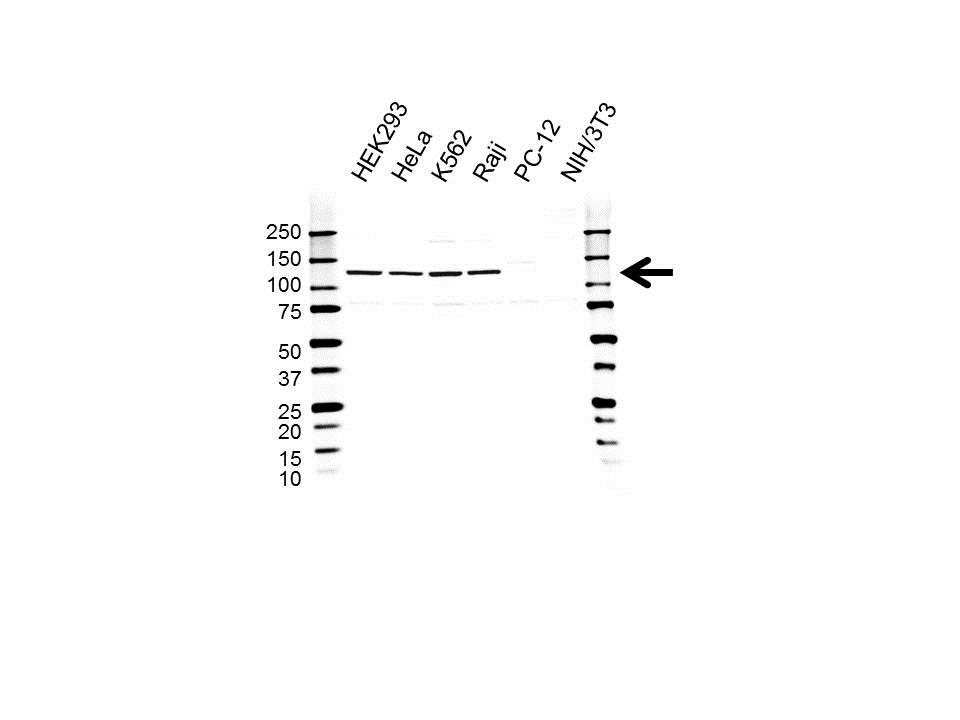Anti UBE4B Antibody (PrecisionAb™ Polyclonal Antibody) gallery image 1