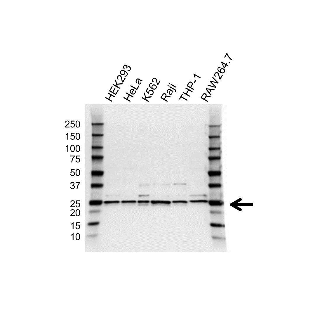 Anti UQCRFS1 Antibody (PrecisionAb Polyclonal Antibody) gallery image 1