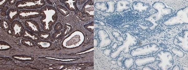 Anti Human Urokinase (C-Terminal) Antibody thumbnail image 1
