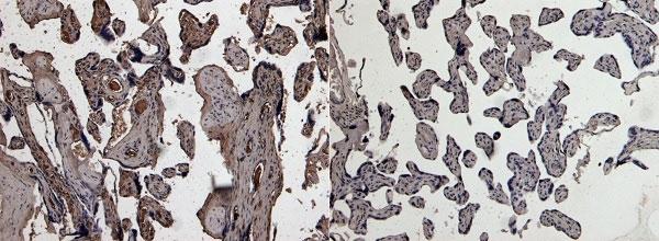 Anti Human Urokinase (C-Terminal) Antibody thumbnail image 2