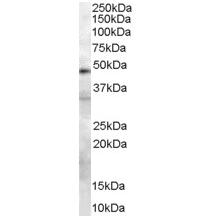 Anti Human Urokinase (C-Terminal) Antibody thumbnail image 3